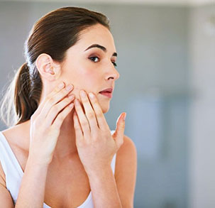 10 Ways to Get Rid of Acne Scars — For Good